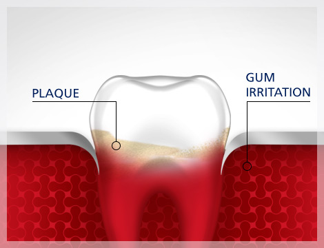 Gum Irritation Tooth Plaque Gum Disease parodontax